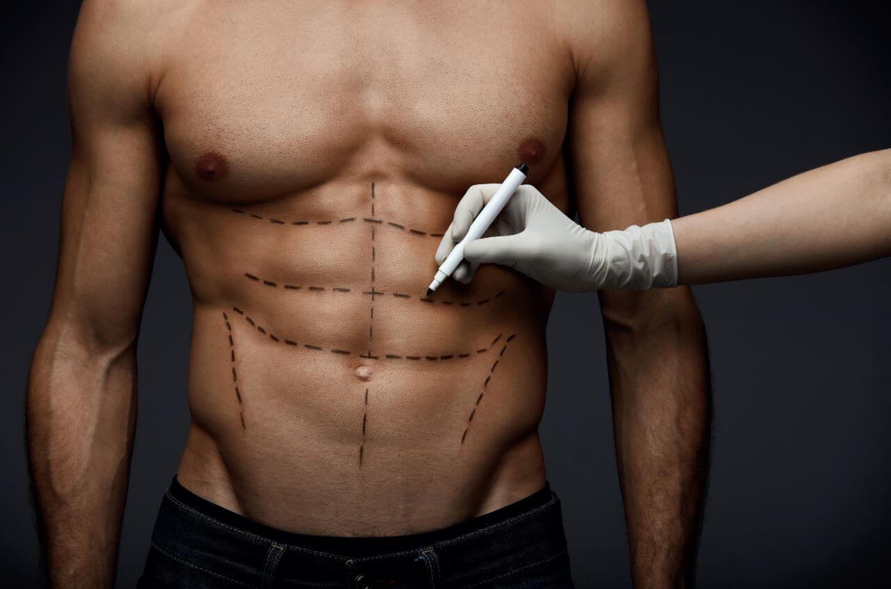 perdita di peso prima dellintervento di addominoplastica