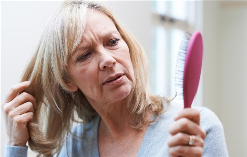ClinicAgostini - La caduta dei capelli nelle donne