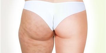 Liposuzione -  E' davvero la soluzione ideale per tutti?